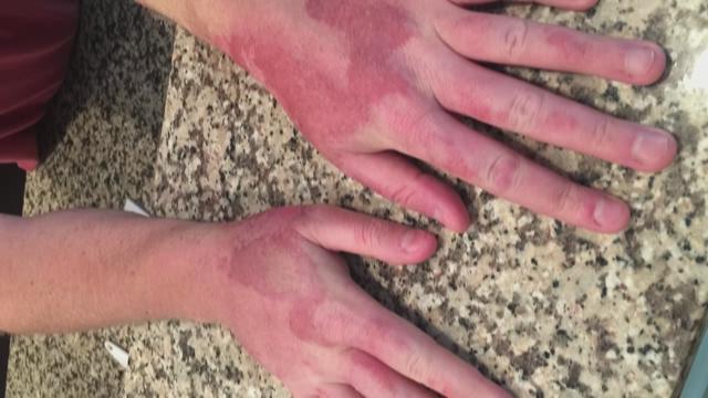 Skin Burns from Citrus Fruit-PKG_WTSP0998_136